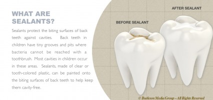 Pew Research Report on Dental Sealant Programs